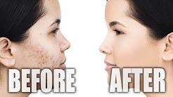 hqdefault - Jane Iredale Makeup Reviews Acne