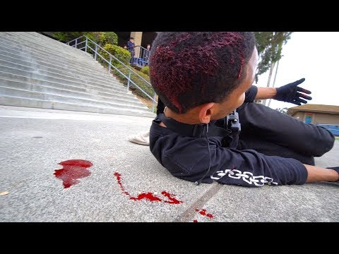 BMX EL TORO ATTEMPT GONE EXTREMELY WRONG *GRAPHIC*