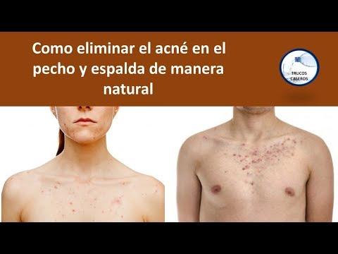 Como eliminar el acne en el pecho y espalda de manera natural