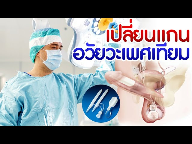 ผ่าตัดใส่แกนอวัยวะเพศเทียม Penile Prosthesis Implantation for Erectile Dysfunction Treatment