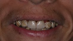CEREC crowns on a physically challenged lady with dermatomyositis