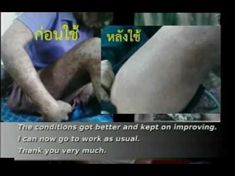 ThaiAsianlife: งานวิจัยมังคุด กับ สะเก็ดเงิน