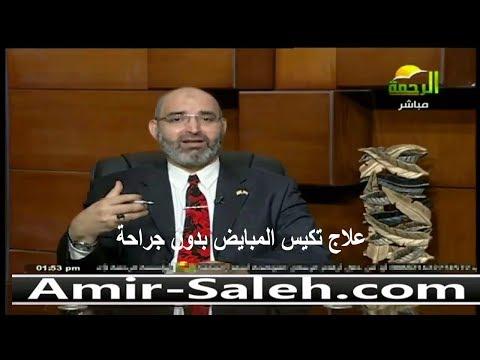 علاج تكيس المبايض بدون جراحة | الدكتور أمير صالح