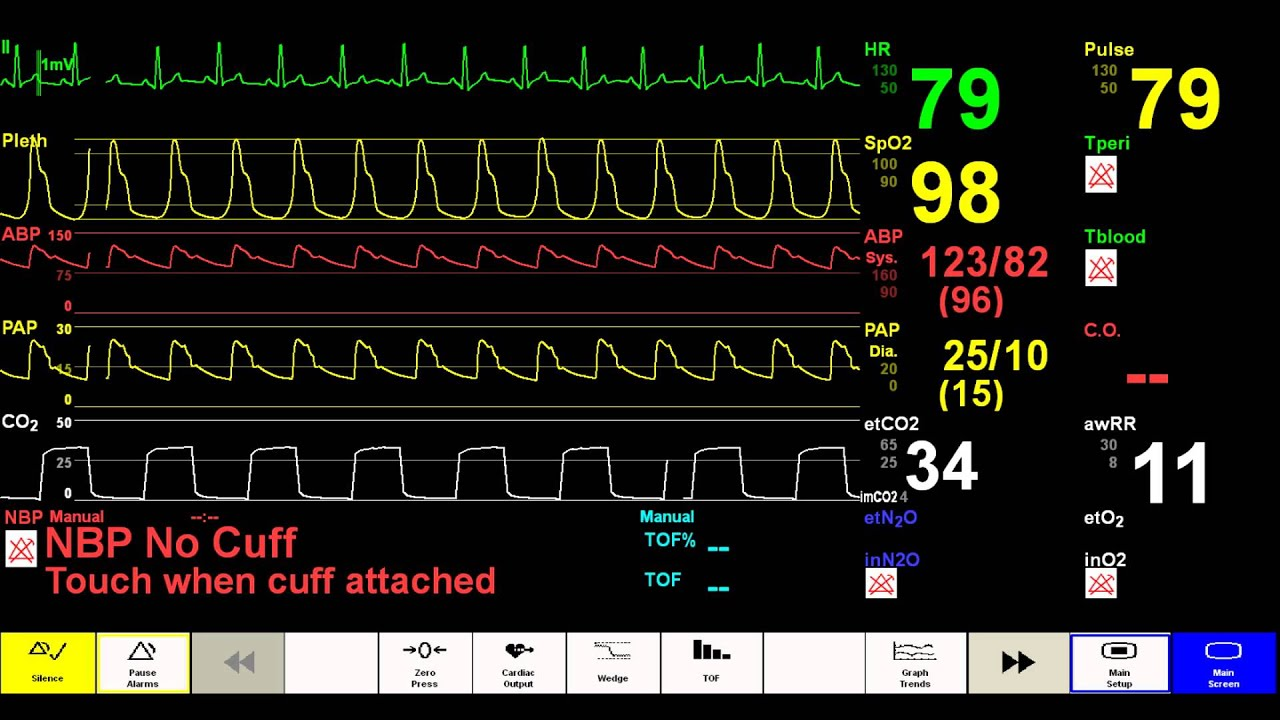 Simulated Patient Monitor
