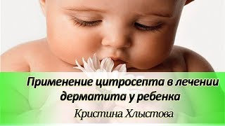 Применение цитросепта в лечении дерматита у ребенка | Кристина Хлыстова