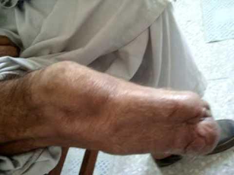 patient stump - Transtibial Amputation - By Nur Rachmat PO - YouTube
