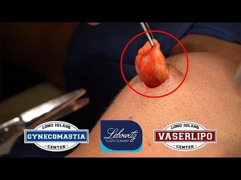 pro-hormone-induced-gynecomastia-gland-removal-surgery-florida-male---dr.-lebowitz