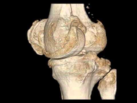 Irad Ka 3d Reconstruction From Ct Data Human Knee Joint Radiologie