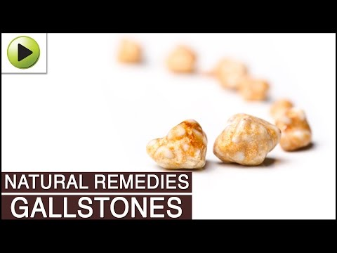gallstones---natural-ayurvedic-home-remedies