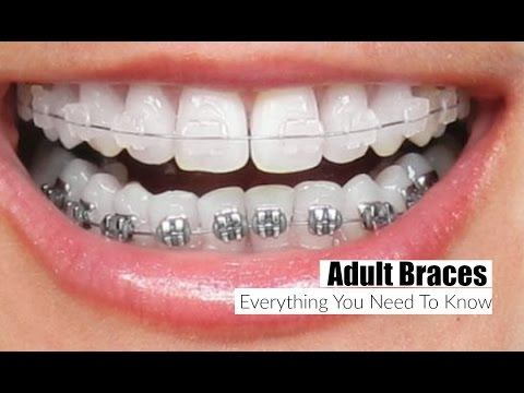 Adult Braces, Everything You Need To Know!-  MissLizHeart
