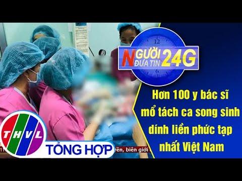 Người đưa tin 24G (11g ngày 15/07/2020) – Hơn 100 y bác sĩ mổ tách ca song sinh dính liền…