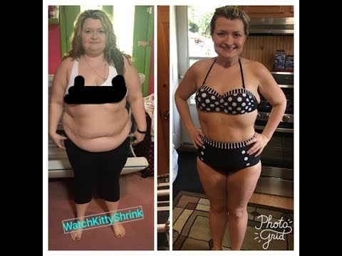 Skin Flick Loose Skin After Weight Loss Surgery 140 Pounds Lost