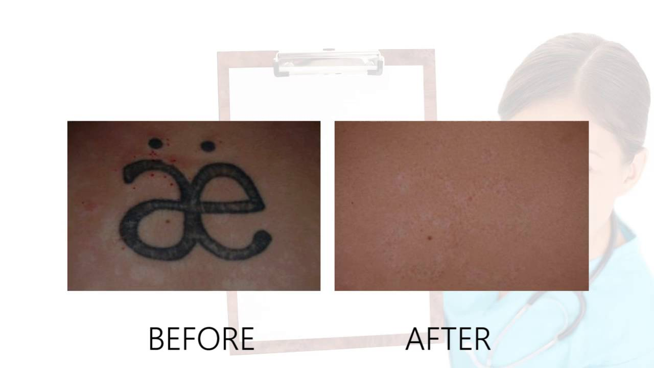 Laser tattoo removal before after photos alex for Tattoo removal nj