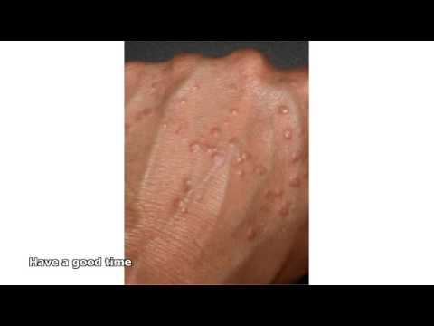 granuloma annulare treatment