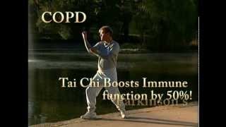 DVD - Anthology of Tai Chi and Qigong: Prescription for the Future by Bill Douglas