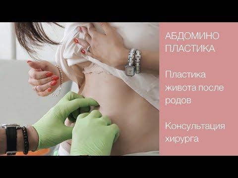 ⁉️ АБДОМИНОПЛАСТИКА | Диастаз, пупочная грыжа, растяжки | Консультация хирурга 💜 LilyBoiko