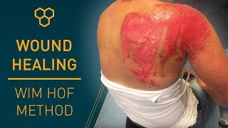Progressive Wound Healing | Wim Hof Method