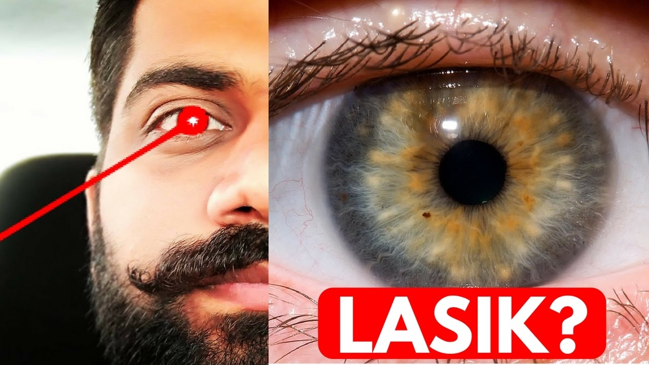 Lasik Eye Surgery Lasers For Eyes Explained Youtube