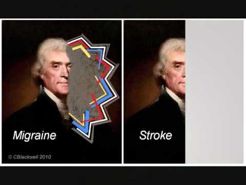 Migraine Aura Pictures >> Migraine 2: Clinical - YouTube