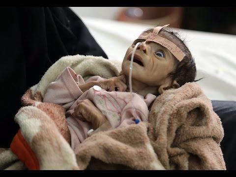 "Dissecting Decades of ""Fake News"" War Propaganda &  Forgotten Genocide in Yemen"