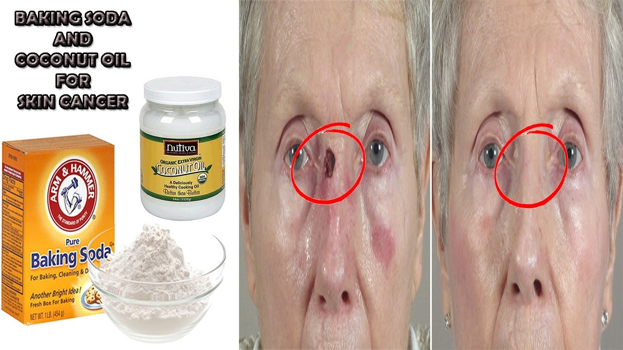 Cure Your Bcc S Internaly With This Skin Cancer Cure By Dreaming The Life Living The Dream