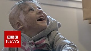 Syrian girl with severe burns gets life changing surgery   BBC News