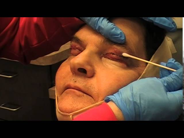 Blepharoplasty and Facelift Recovery - Carmel, IN  Dr  Mark Hamilton