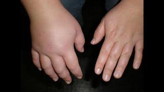 Как избавиться от отеков и лишней жидкости в организме Отечность лица и тела