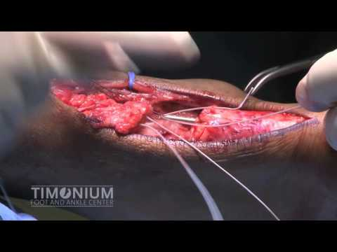 Achilles tendon repair