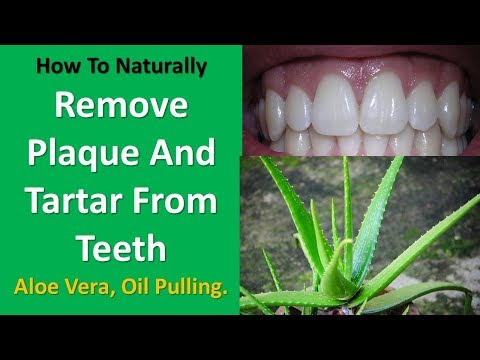 Remove Plaque and Tartar from Teeth - Aloe Vera, Oil Pulling