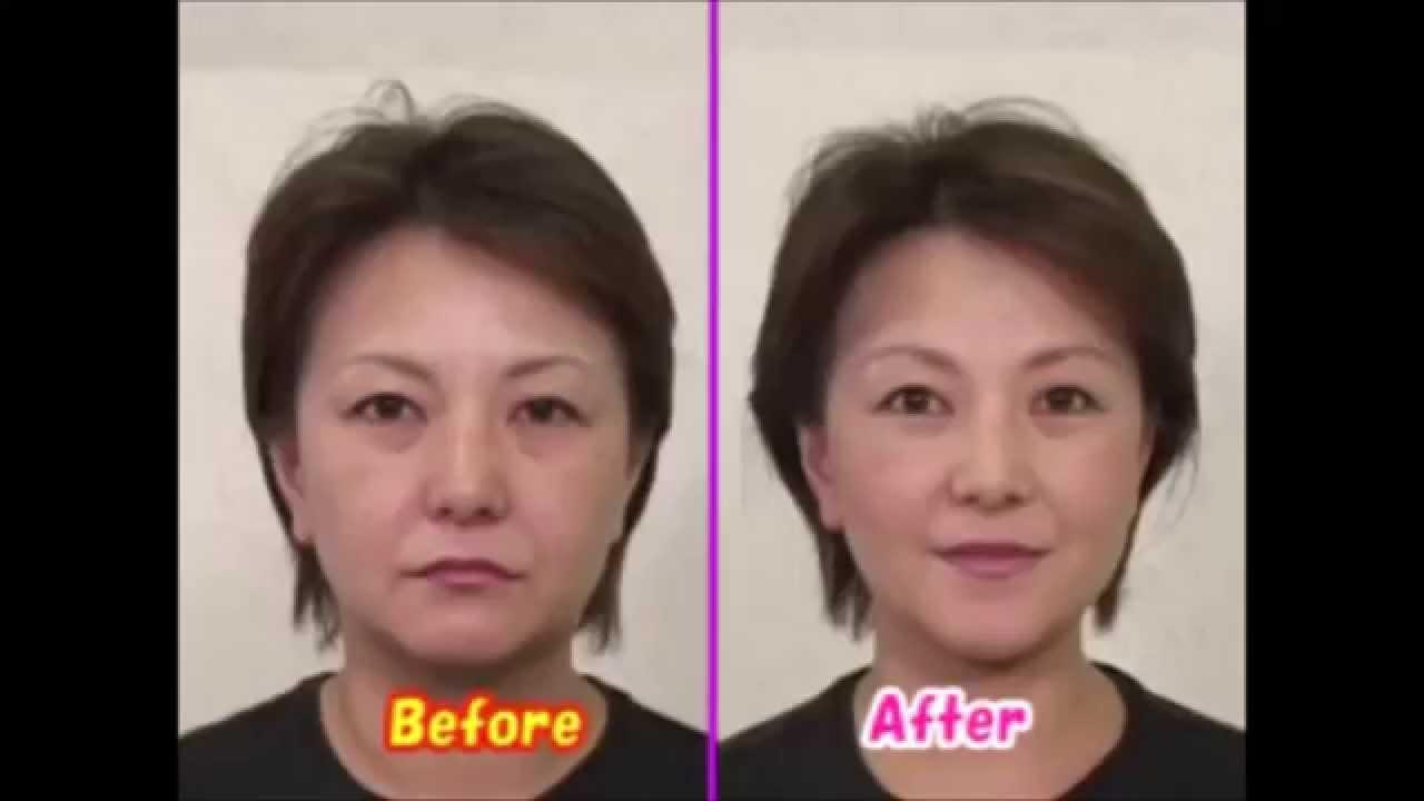 顔 の たるみ 改善 ためして ガッテン 「ためしてガッテン」で紹介された肌のたるみの原因