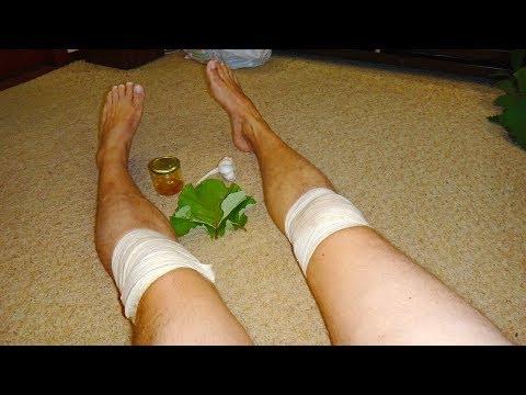 Болят колени что делать? Ничего не помогает? Боль в коленном суставе? Это невероятно и поможет 100%