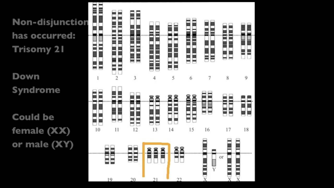 4 2 7yze A Human Karyotype To Determine Gender And
