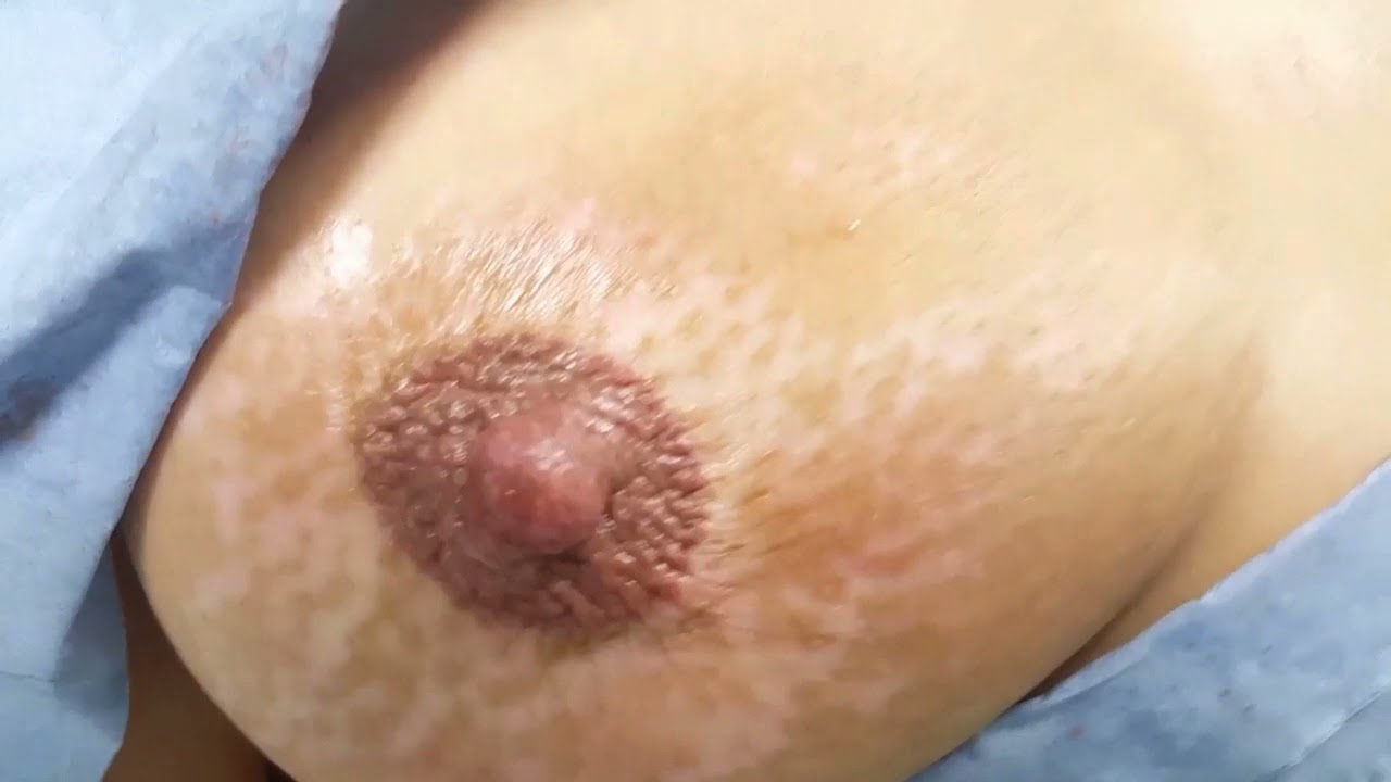 Vitiligo Nipple & Areola Colour Restoration Micropigmentation Medical Tattoo by El Truchan