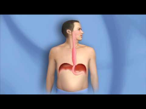 Surgery for Esophagus Cancer, Esophagectomy – Mayo Clinic