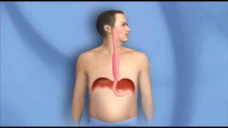Surgery for Esophagus Cancer, Esophagectomy-Mayo Clinic