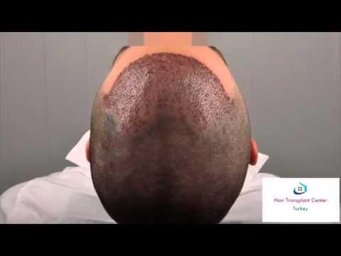 Dr. Erdogan Koray Asmed Clinic www.hairtransplantcenter-turkey.com Turkey Istanbul 2100 Gr