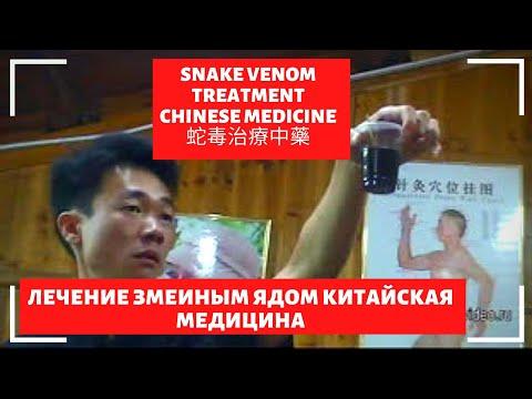 Лечение змеиным ядом Chinese medicine treatment with snake venom 治疗的蛇毒 処理のヘビ毒 치료의 뱀독