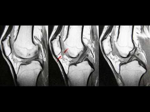 Will An Injection For Knee Pain Actually Work For Me? - Pain Doctor