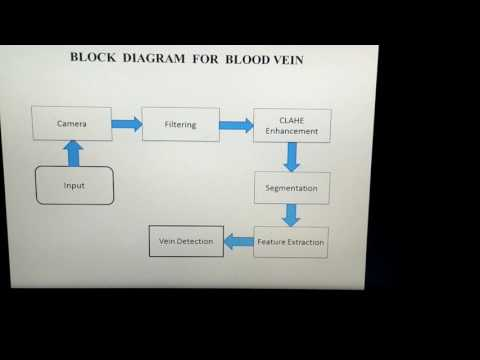 RELIABLE BLOOD VEIN DETECTION EMPLOYING CLAHE