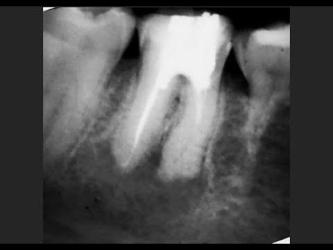 """Удаление зуба или лечение """"кисты"""" зуба? Что лучше?"""