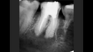 Удаление зуба или лечение
