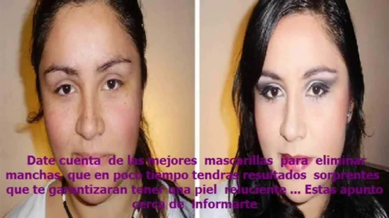 Aclarar La Piel Naturalmente Como Limpiar La Cara