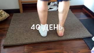 Разрыв ахилла 40 дневный курс, полное восстановление после операции