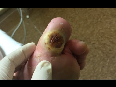 Cat fungal nail infection