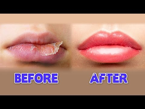 7 Tips For Kissable Lips  ENG SUB • dingo kbeauty