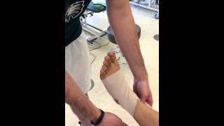 Ankle Edema Compression Wrap Video