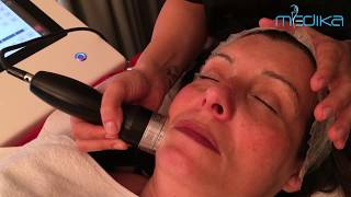 Mesoterapia senza ago - Medika Italia