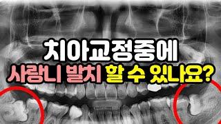 치아교정중에 사랑니 발치 할수 있나요?