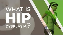 hqdefault - Hip Dysplasia Back Pain